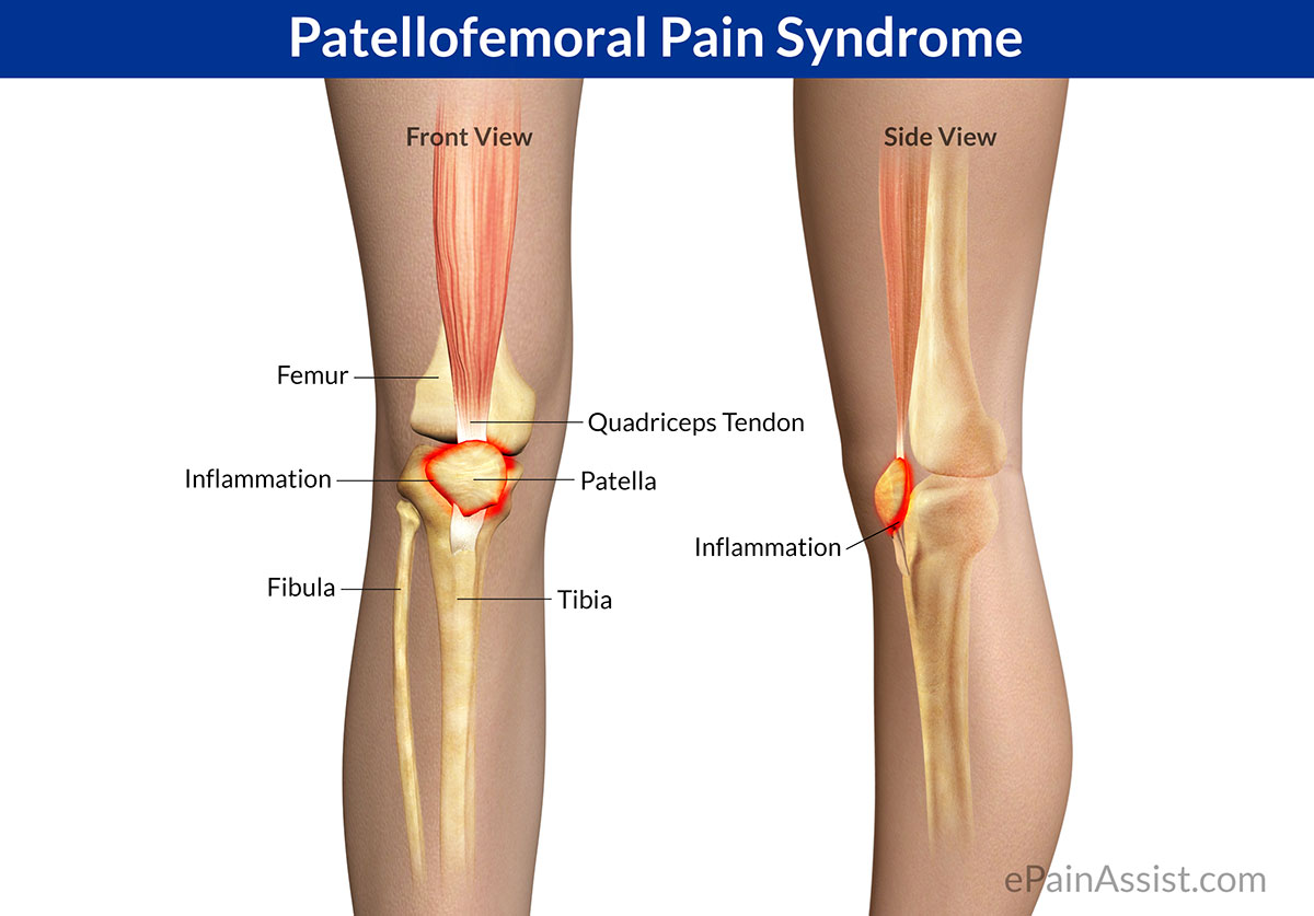 Knee Pain PART 1 – Patellofemoral Pain Syndrome | DC Injury Clinic