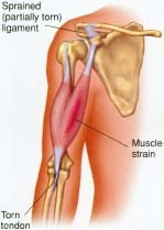 Muscle, Ligament, Tendon